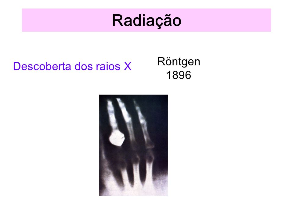 Radiação Röntgen 1896 Descoberta dos raios X