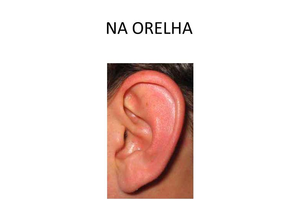 NA ORELHA