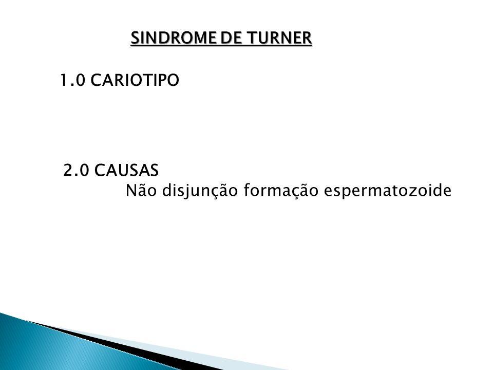 SINDROME DE TURNER 1.0 CARIOTIPO 2.0 CAUSAS Não disjunção formação espermatozoide