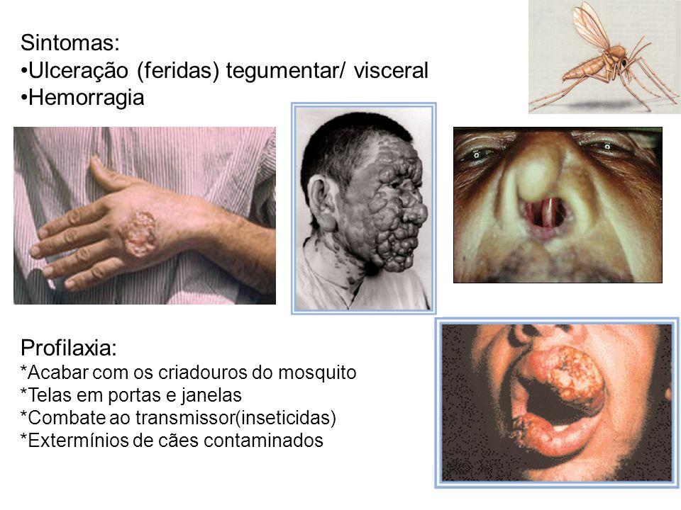 Ulceração (feridas) tegumentar/ visceral Hemorragia