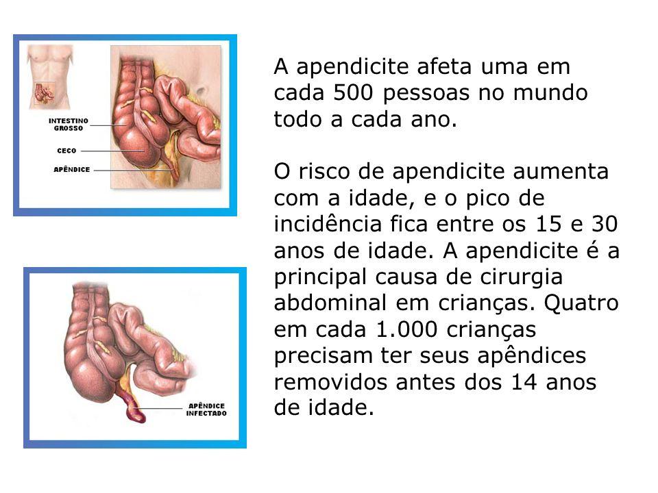 A apendicite afeta uma em cada 500 pessoas no mundo todo a cada ano.