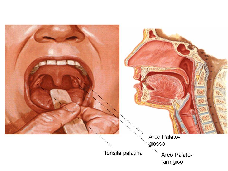 Arco Palato-glosso Tonsila palatina Arco Palato-faríngico