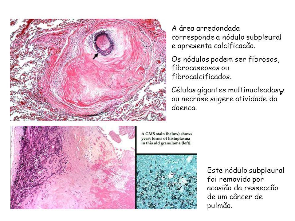 A área arredondada corresponde a nódulo subpleural e apresenta calcificacão.