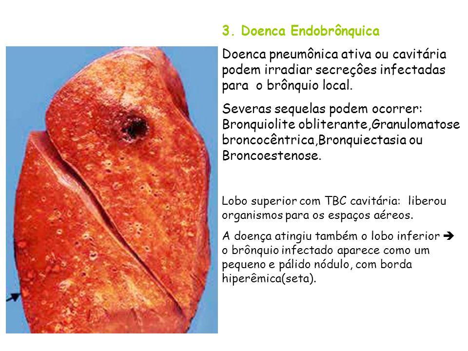 3. Doenca Endobrônquica Doenca pneumônica ativa ou cavitária podem irradiar secreçôes infectadas para o brônquio local.