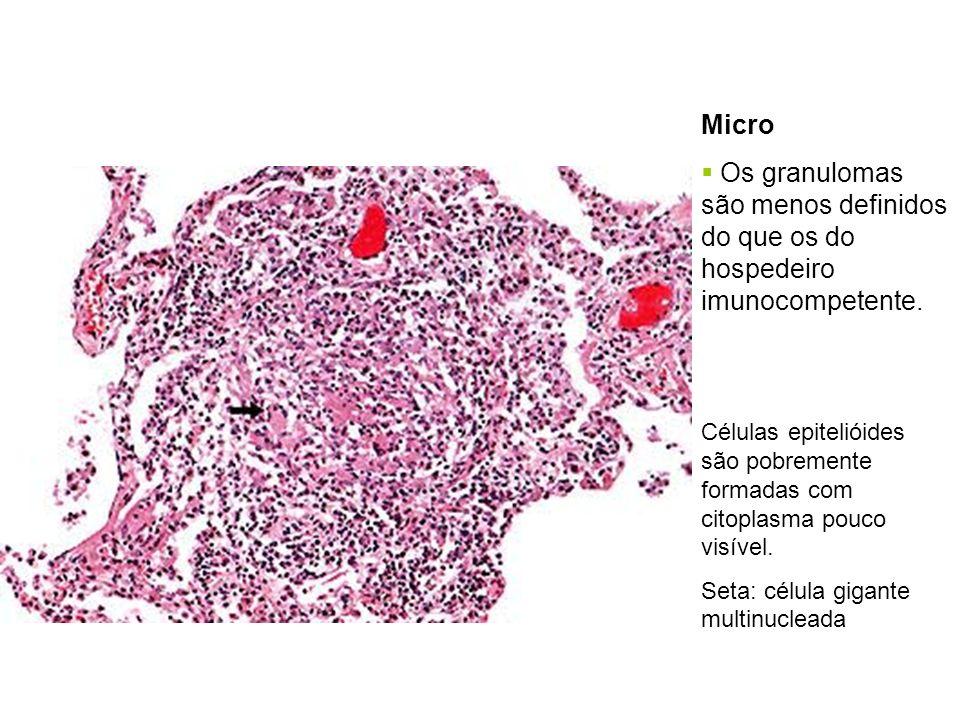 Micro Os granulomas são menos definidos do que os do hospedeiro imunocompetente.