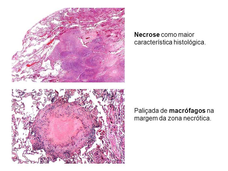 Necrose como maior característica histológica.