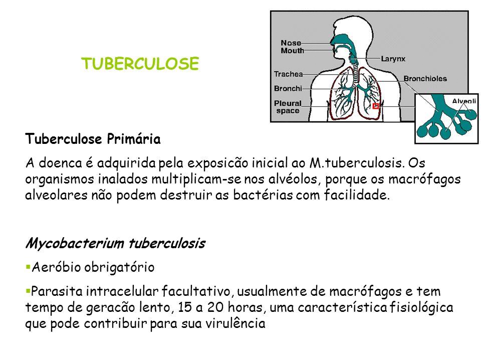 TUBERCULOSE Tuberculose Primária