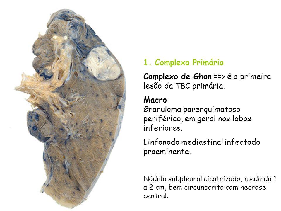 Complexo de Ghon ==> é a primeira lesão da TBC primária.