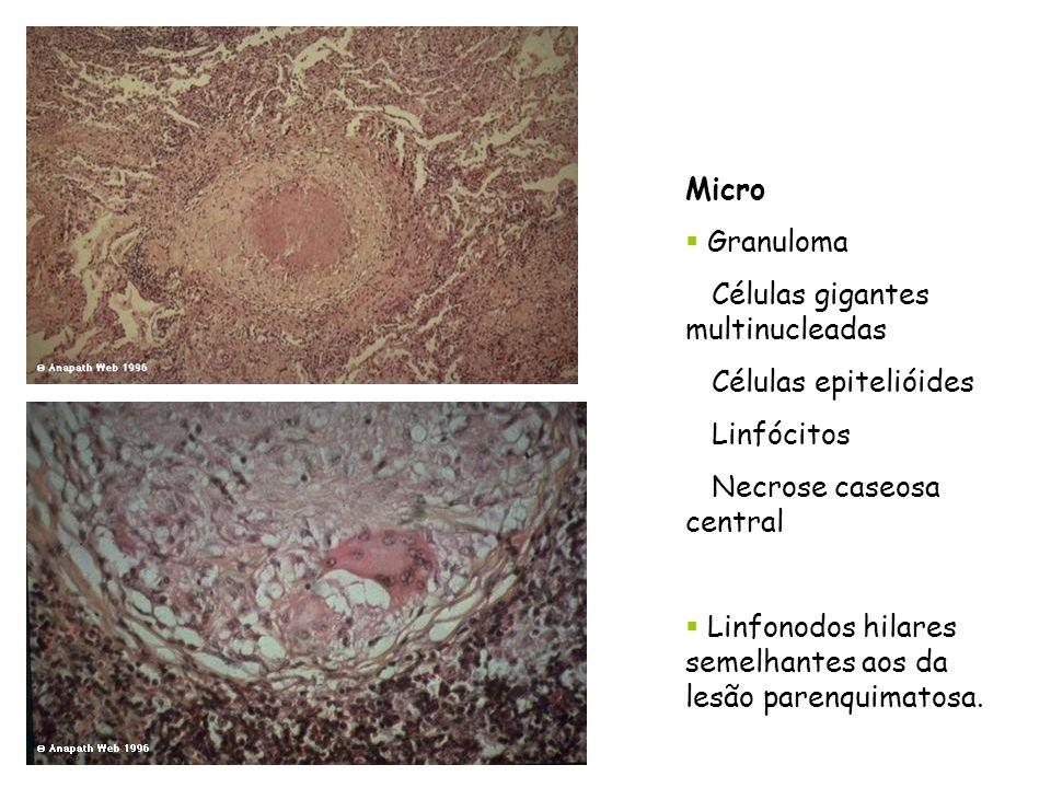 Micro Granuloma. Células gigantes multinucleadas. Células epitelióides. Linfócitos. Necrose caseosa central.