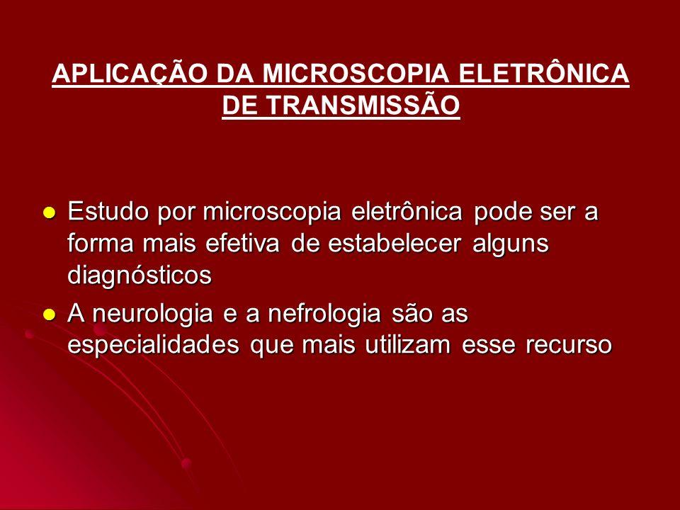 APLICAÇÃO DA MICROSCOPIA ELETRÔNICA DE TRANSMISSÃO