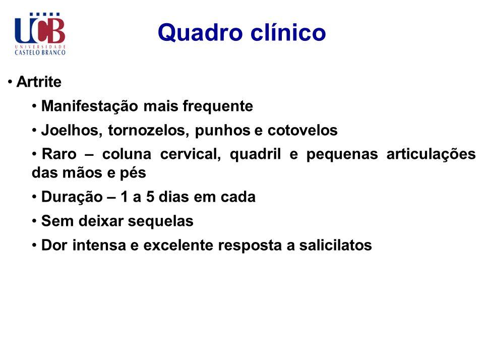 Quadro clínico Artrite Manifestação mais frequente