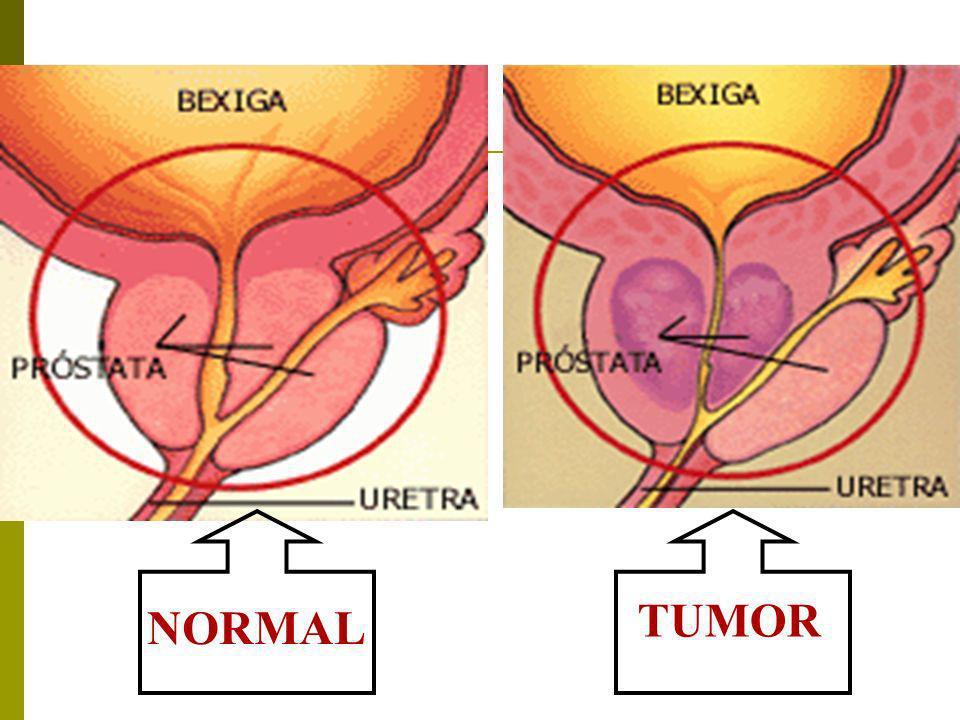 TUMOR NORMAL