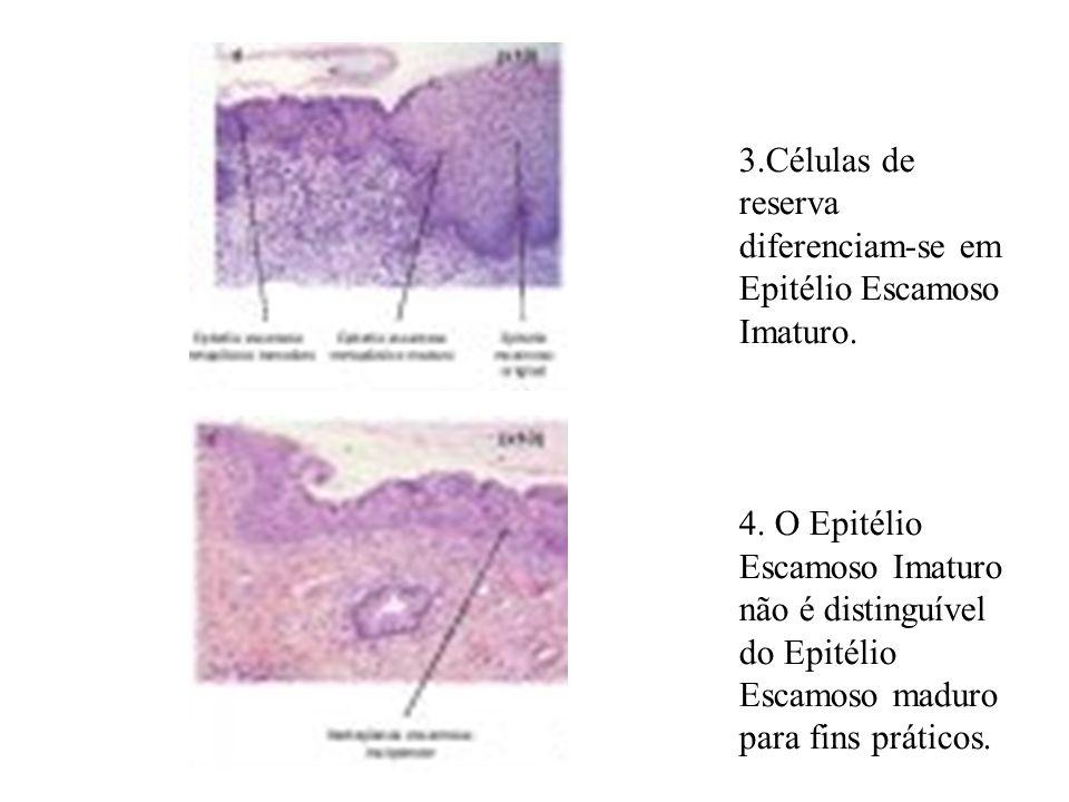 3.Células de reserva diferenciam-se em Epitélio Escamoso Imaturo.