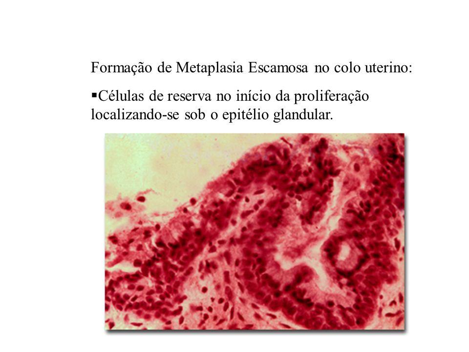 Formação de Metaplasia Escamosa no colo uterino: