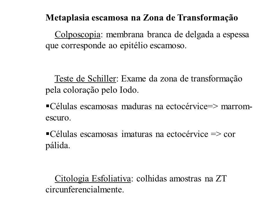 Metaplasia escamosa na Zona de Transformação