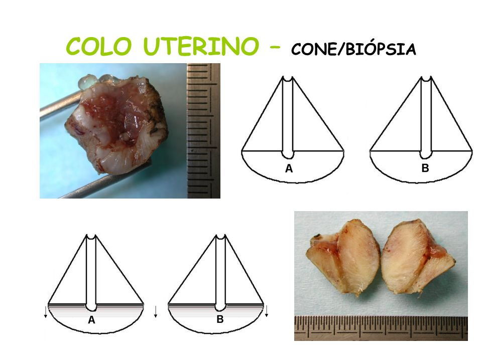 COLO UTERINO – CONE/BIÓPSIA