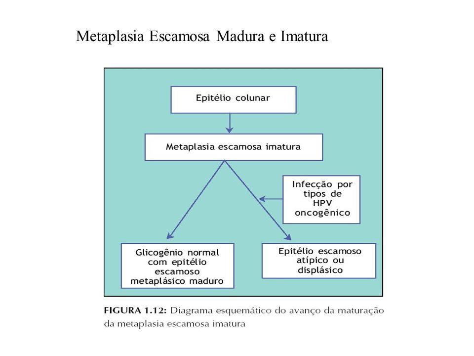 Metaplasia Escamosa Madura e Imatura