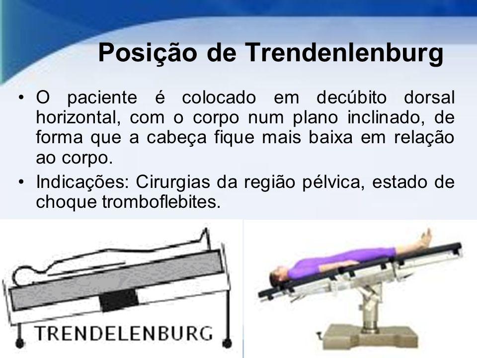 Posição de Trendenlenburg