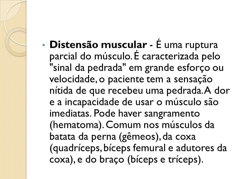 Distensão muscular - É uma ruptura parcial do músculo