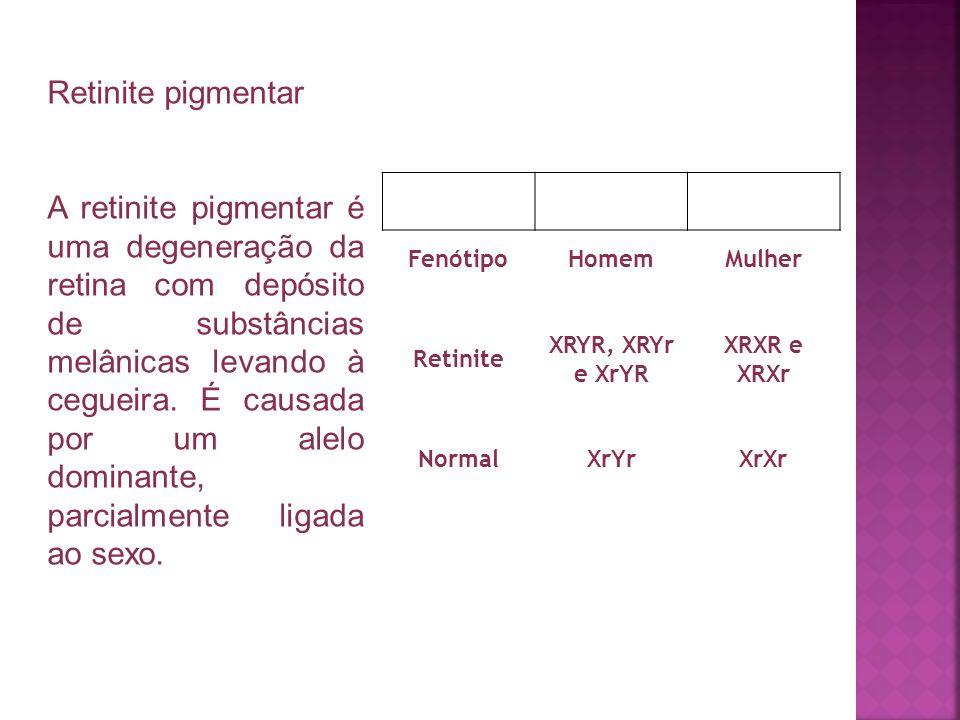 Retinite pigmentar