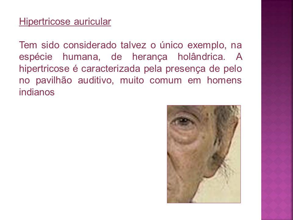 Hipertricose auricular