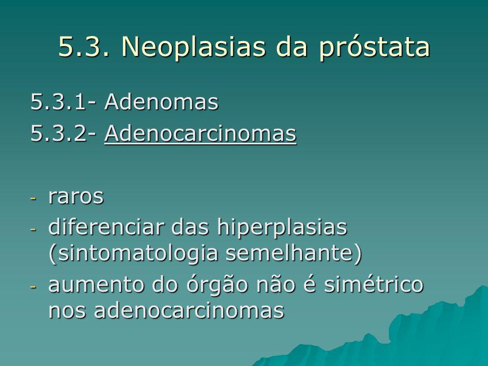 5.3. Neoplasias da próstata