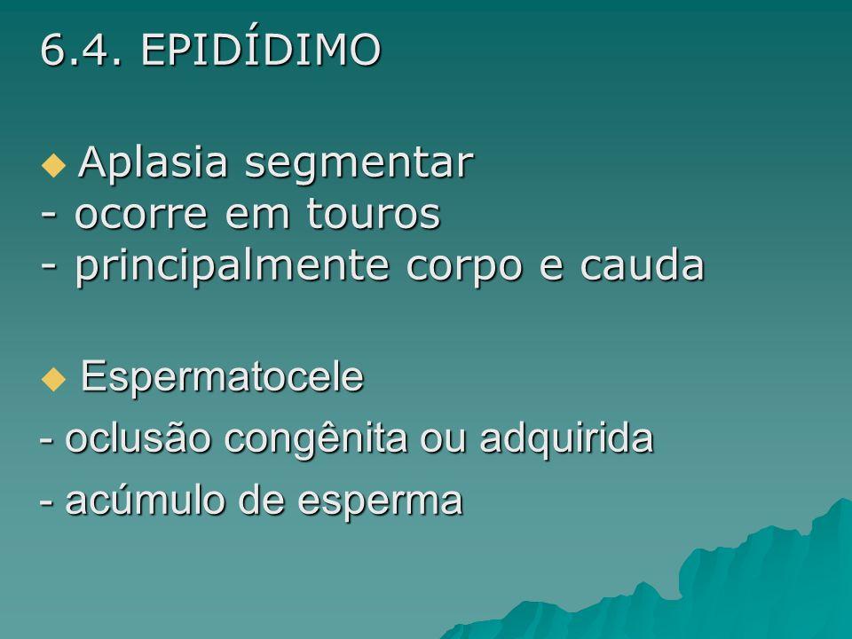 6.4. EPIDÍDIMO Aplasia segmentar. ocorre em touros. principalmente corpo e cauda. Espermatocele.