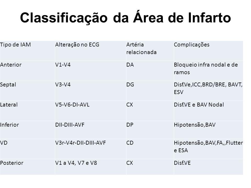 Classificação da Área de Infarto