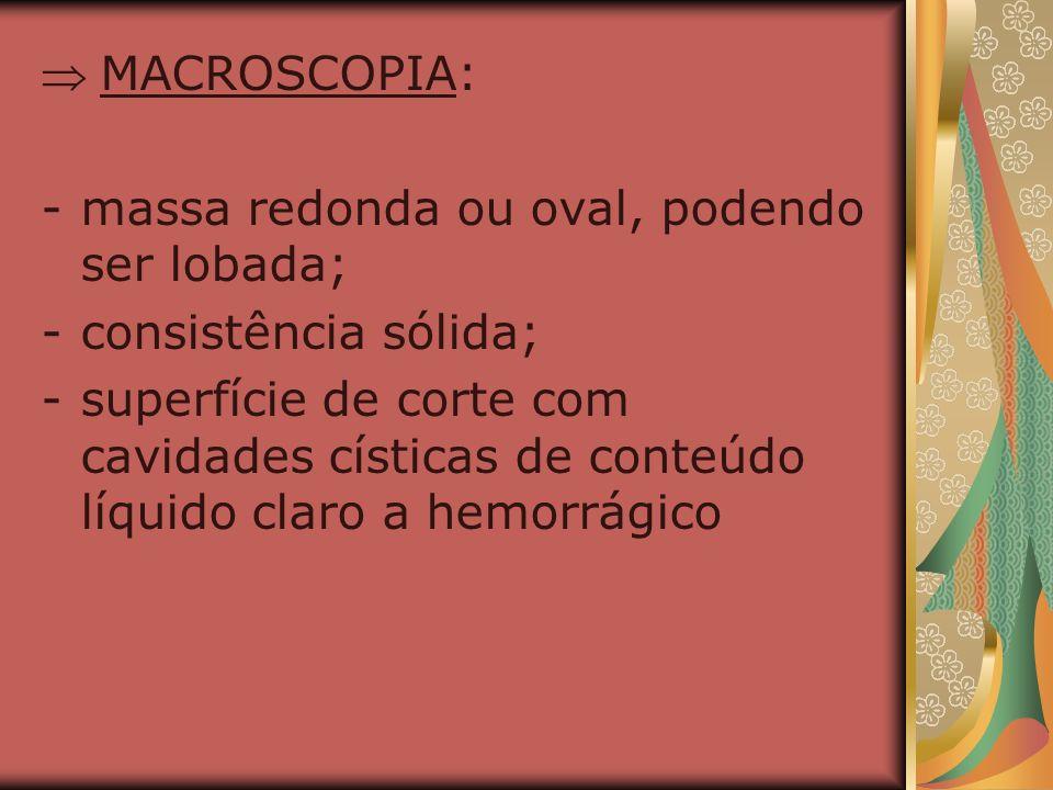  MACROSCOPIA: massa redonda ou oval, podendo ser lobada; consistência sólida;