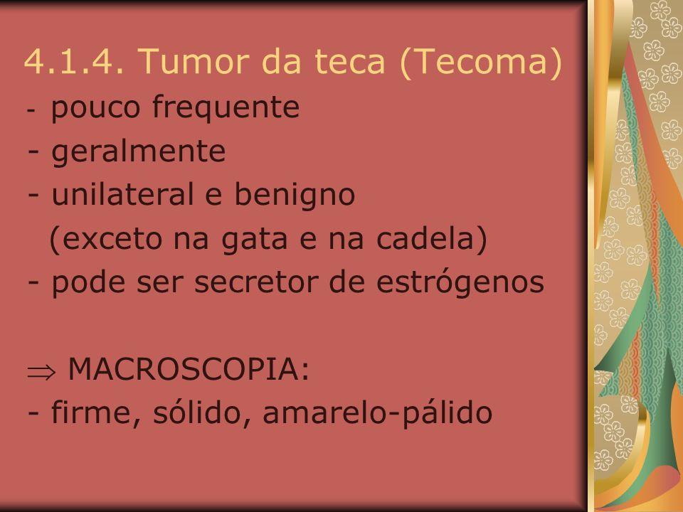 4.1.4. Tumor da teca (Tecoma) - geralmente - unilateral e benigno
