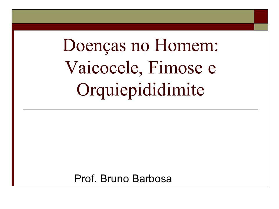 Doenças no Homem: Vaicocele, Fimose e Orquiepididimite
