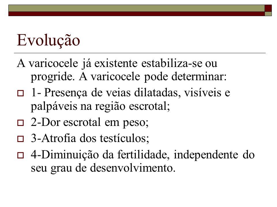 Evolução A varicocele já existente estabiliza-se ou progride. A varicocele pode determinar: