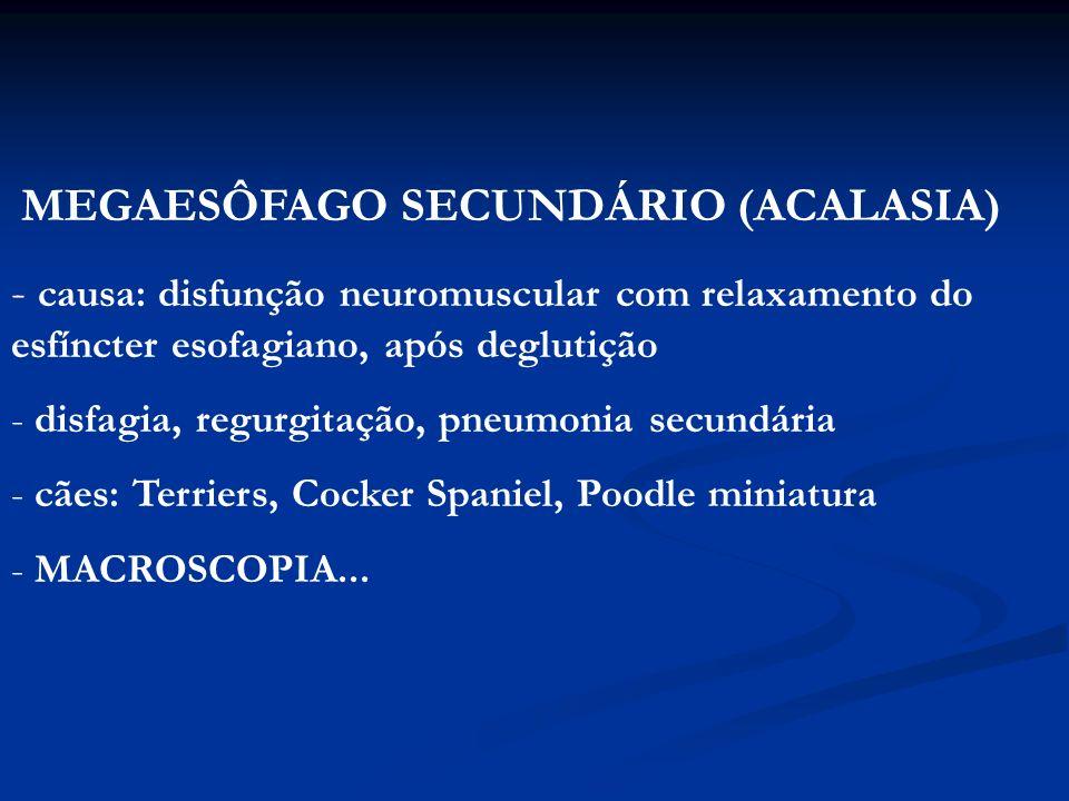 MEGAESÔFAGO SECUNDÁRIO (ACALASIA)