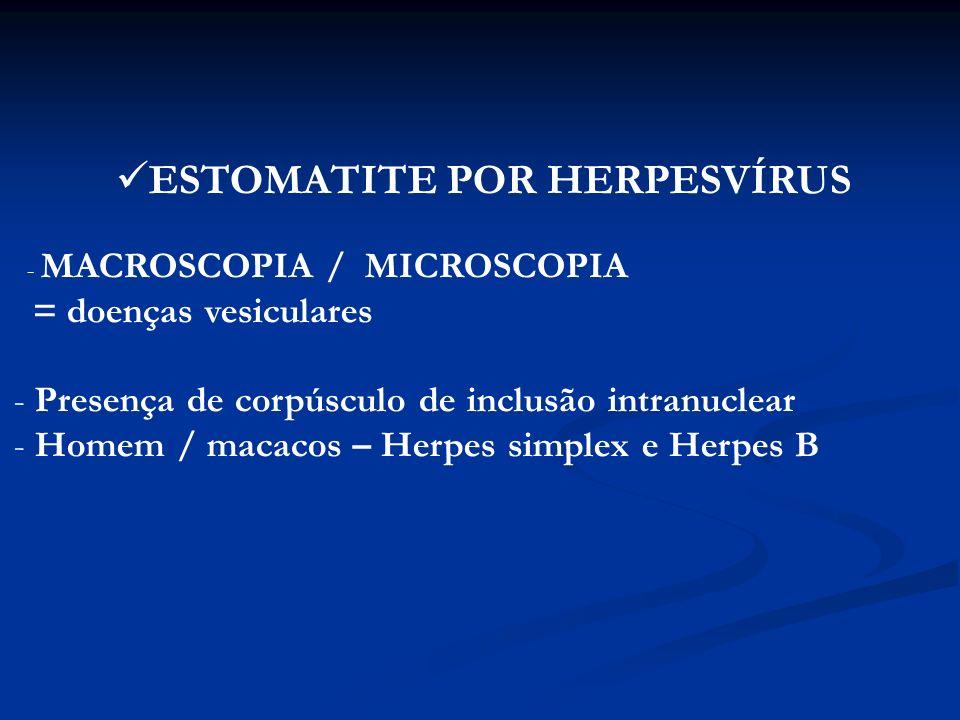 ESTOMATITE POR HERPESVÍRUS