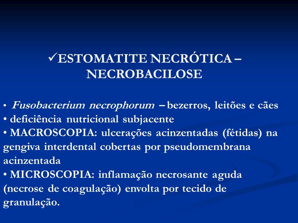 ESTOMATITE NECRÓTICA – NECROBACILOSE