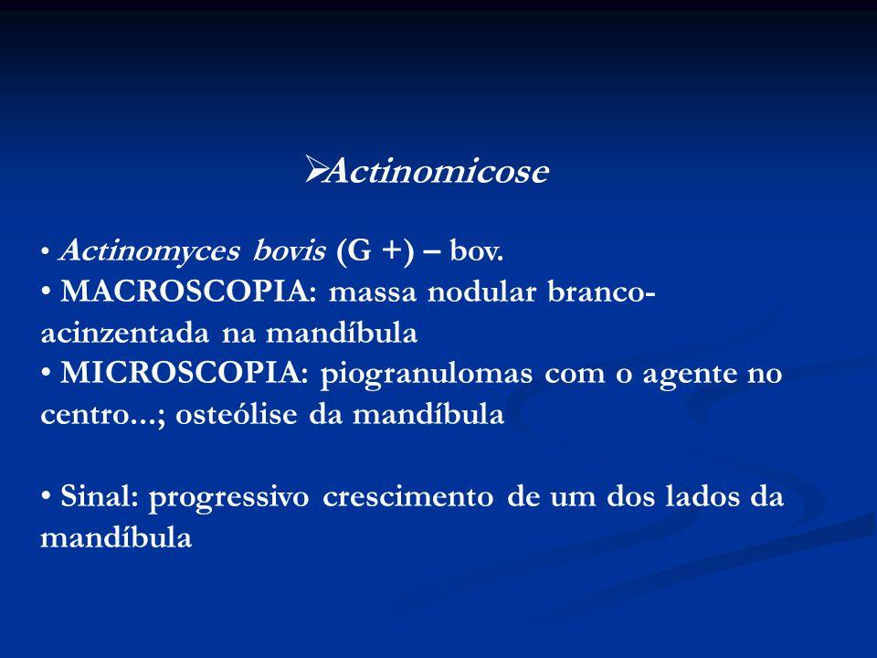 Actinomicose Actinomyces bovis (G +) – bov. MACROSCOPIA: massa nodular branco-acinzentada na mandíbula.