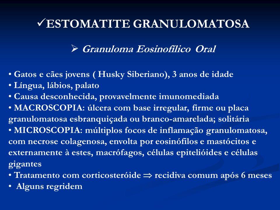 ESTOMATITE GRANULOMATOSA Granuloma Eosinofílico Oral
