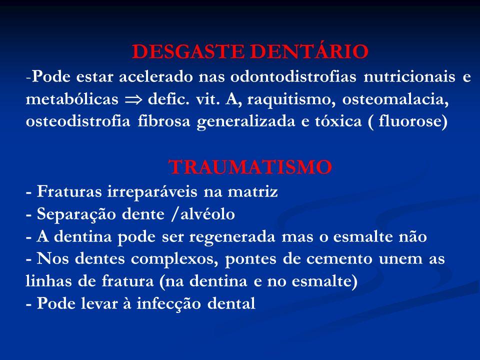 DESGASTE DENTÁRIO TRAUMATISMO