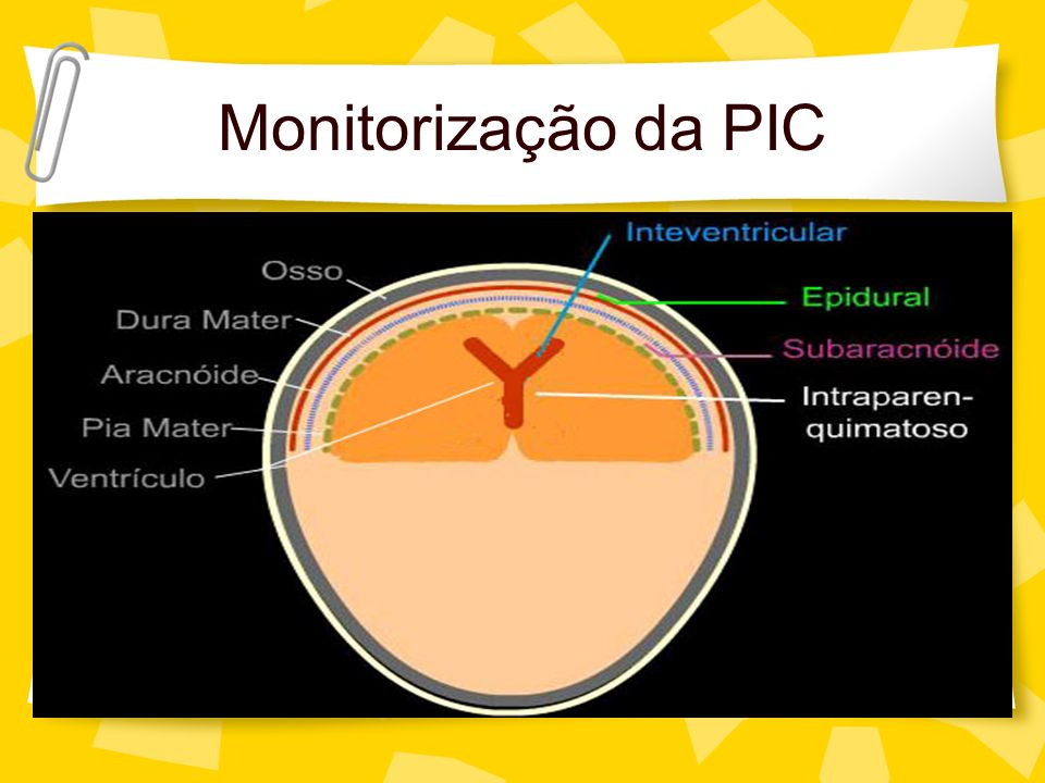 Monitorização da PIC