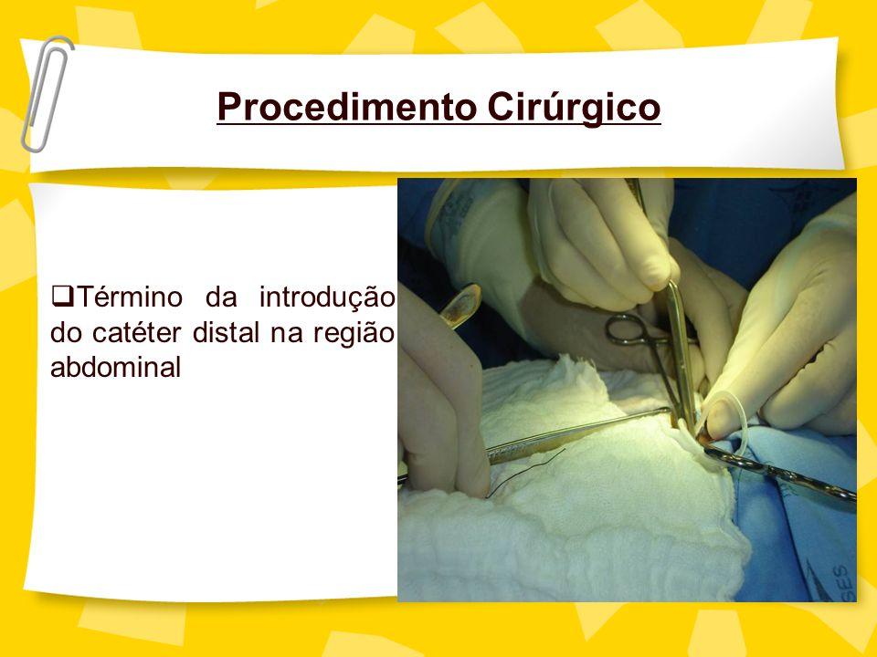 Procedimento Cirúrgico