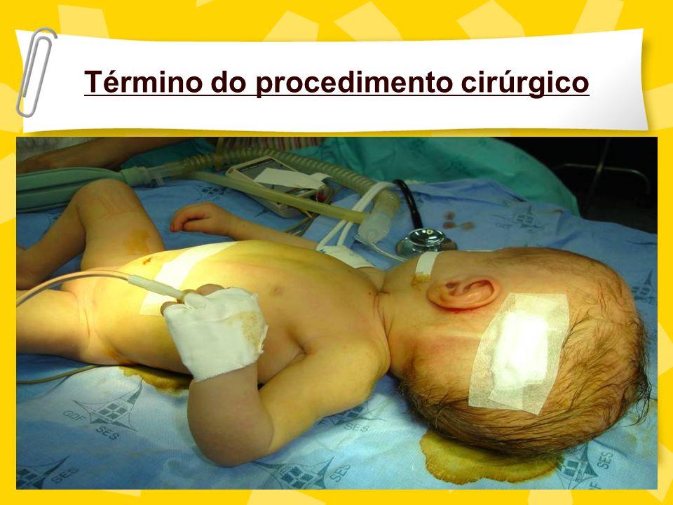 Término do procedimento cirúrgico