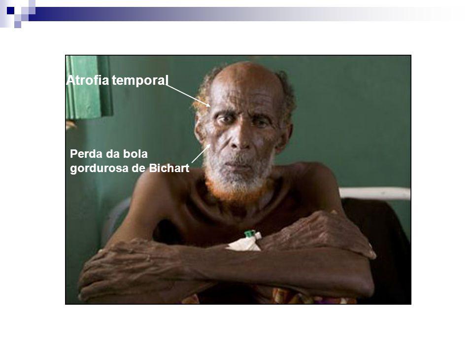 Atrofia temporal Perda da bola gordurosa de Bichart