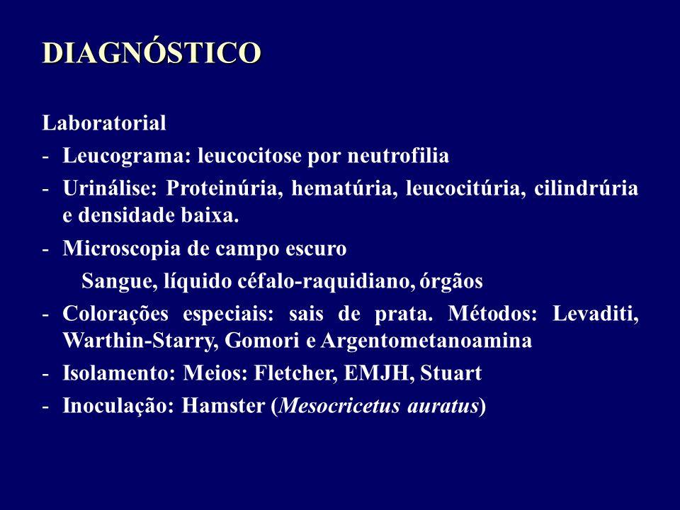 DIAGNÓSTICO Laboratorial Leucograma: leucocitose por neutrofilia