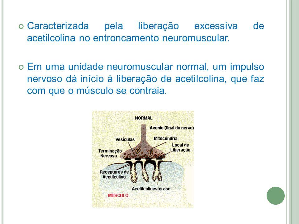 Caracterizada pela liberação excessiva de acetilcolina no entroncamento neuromuscular.