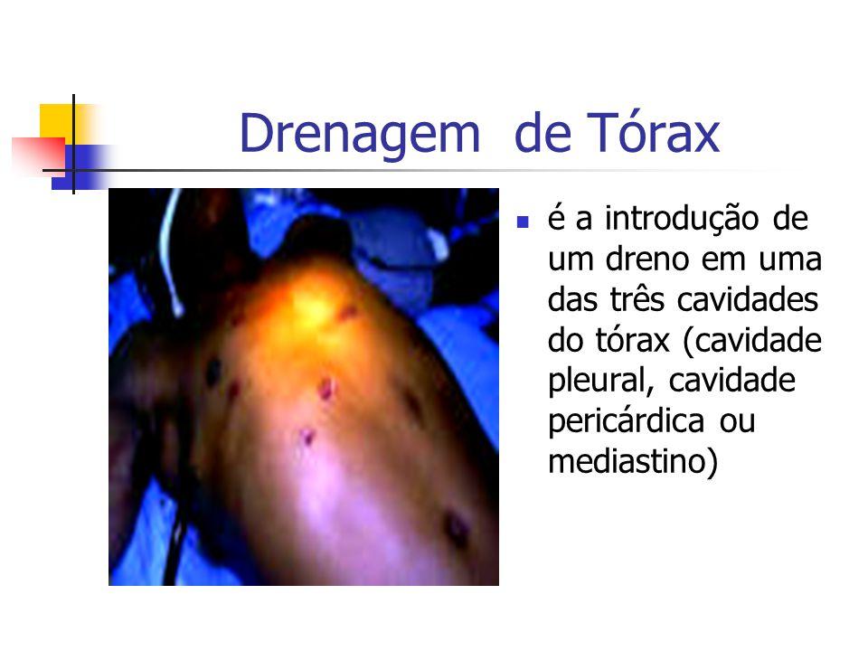 Drenagem de Tórax é a introdução de um dreno em uma das três cavidades do tórax (cavidade pleural, cavidade pericárdica ou mediastino)