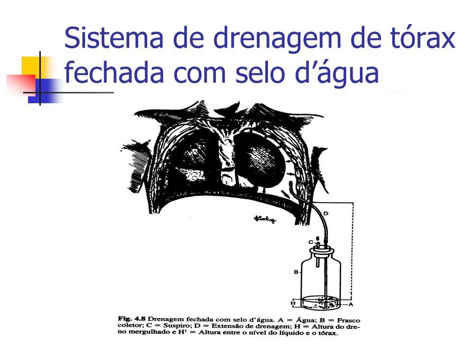 Sistema de drenagem de tórax fechada com selo d'água