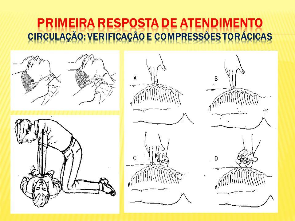 PRIMEIRA RESPOSTA DE ATENDIMENTO CIRCULAÇÃO: Verificação e compressões TORÁCICAS
