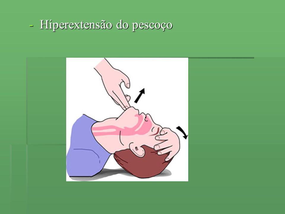 Hiperextensão do pescoço