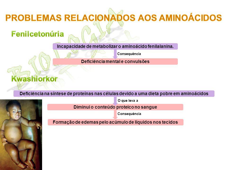 Biologia Problemas relacionados aos aminoácidos Fenilcetonúria