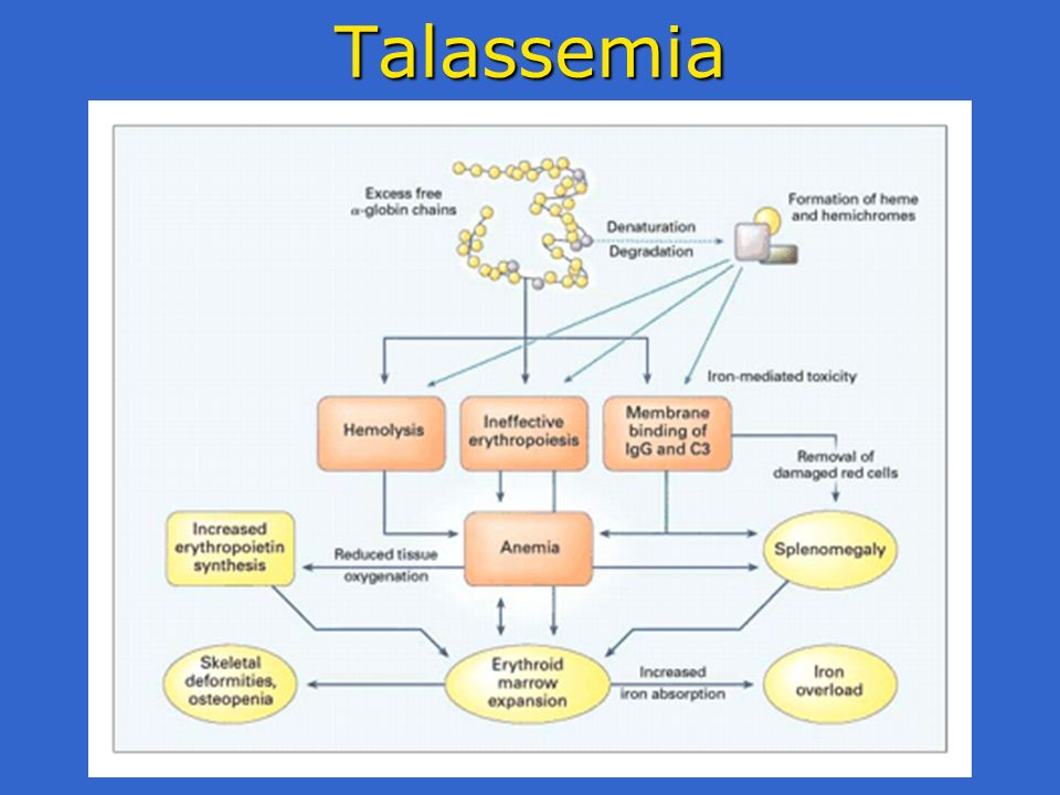 Talassemia
